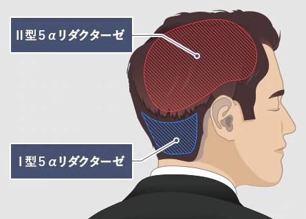 【AGA治療】5α(アルファ)リダクターゼ!AGAは頭髪のシロアリ。